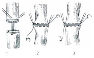 anastomosis