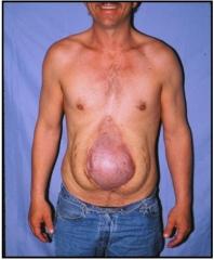 incisional hernia